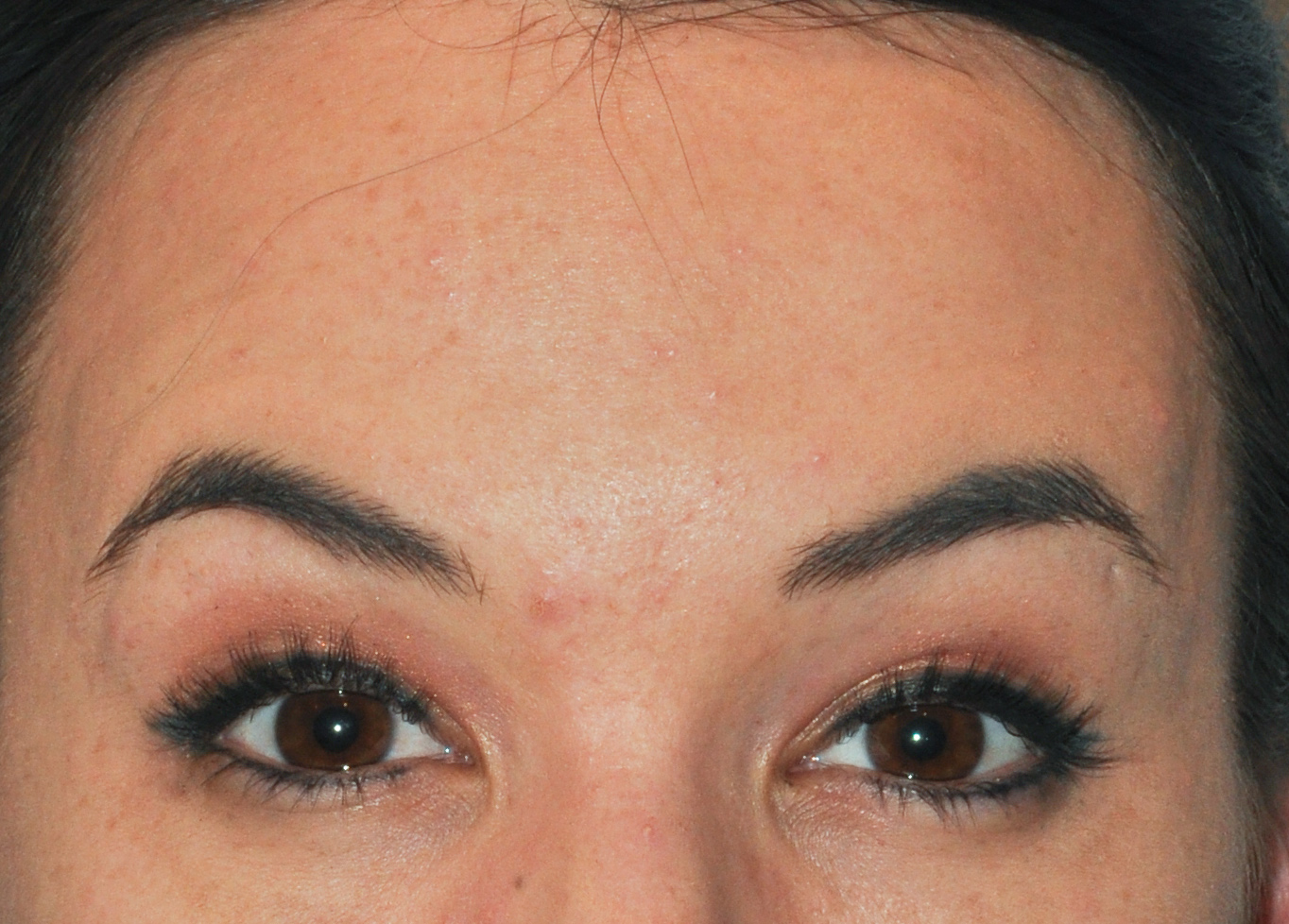 Forehead Botox 01 After