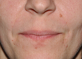 Lower Face Filler 02 After