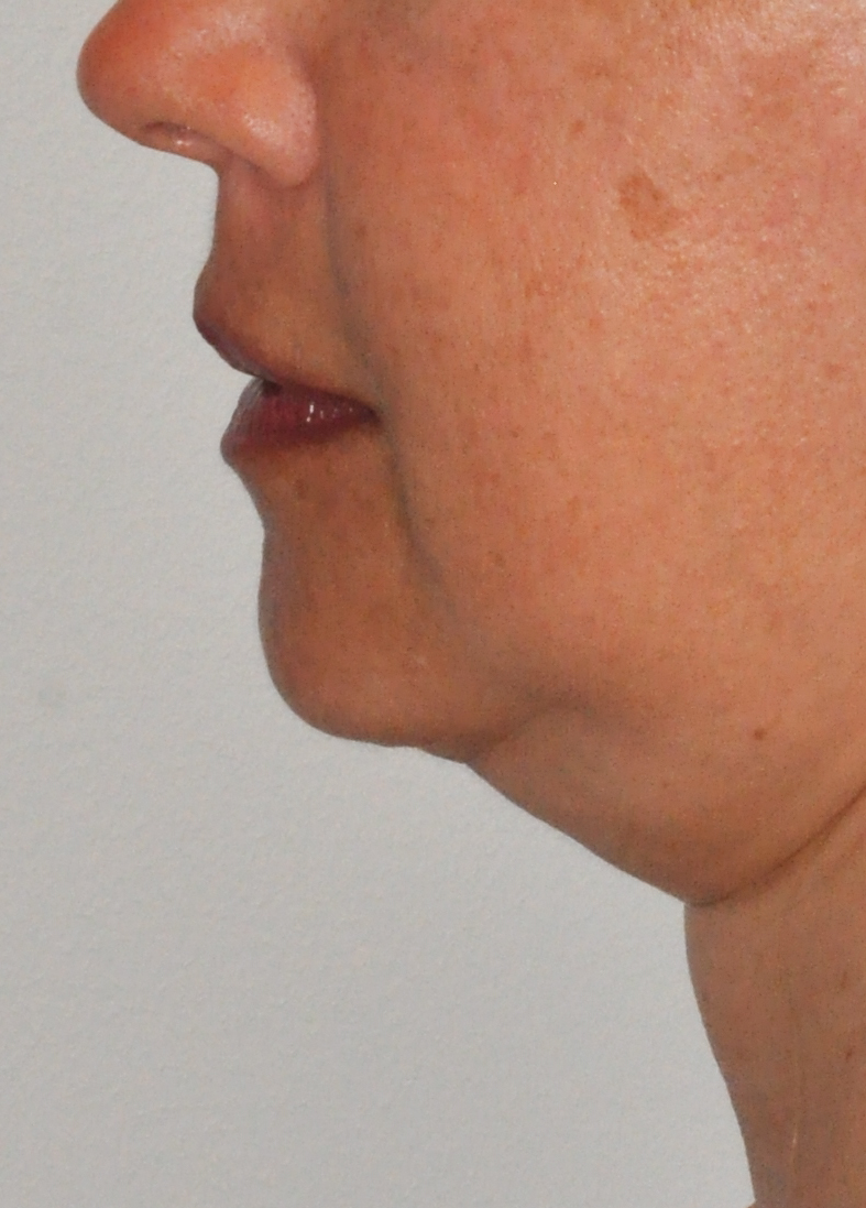 Kybella 01 Before