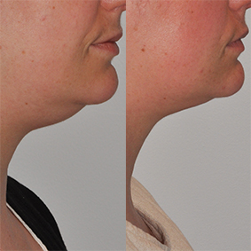 Kybella (Neck Lift) Therapy