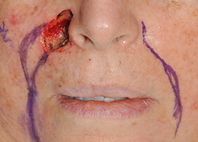 Eyelid and Cheek Reconstruction 05 Before