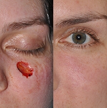 Eyelid and Cheek Reconstruction