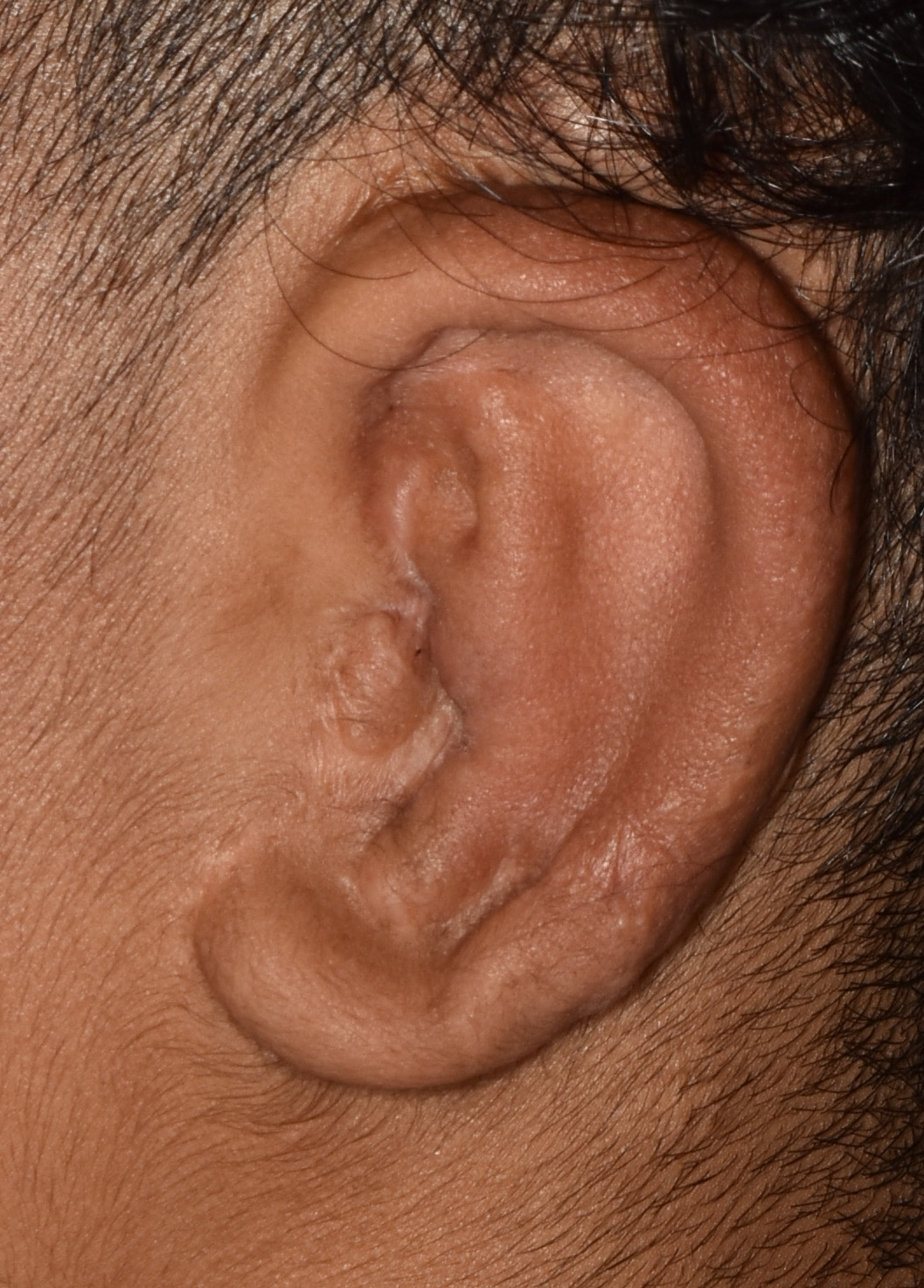 Microtia Reconstruction 01 After