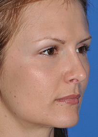 Rhinoplasty 01 After