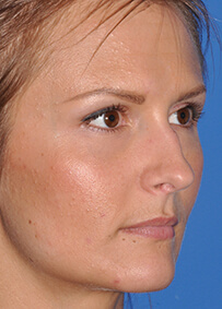 Rhinoplasty 01 Before