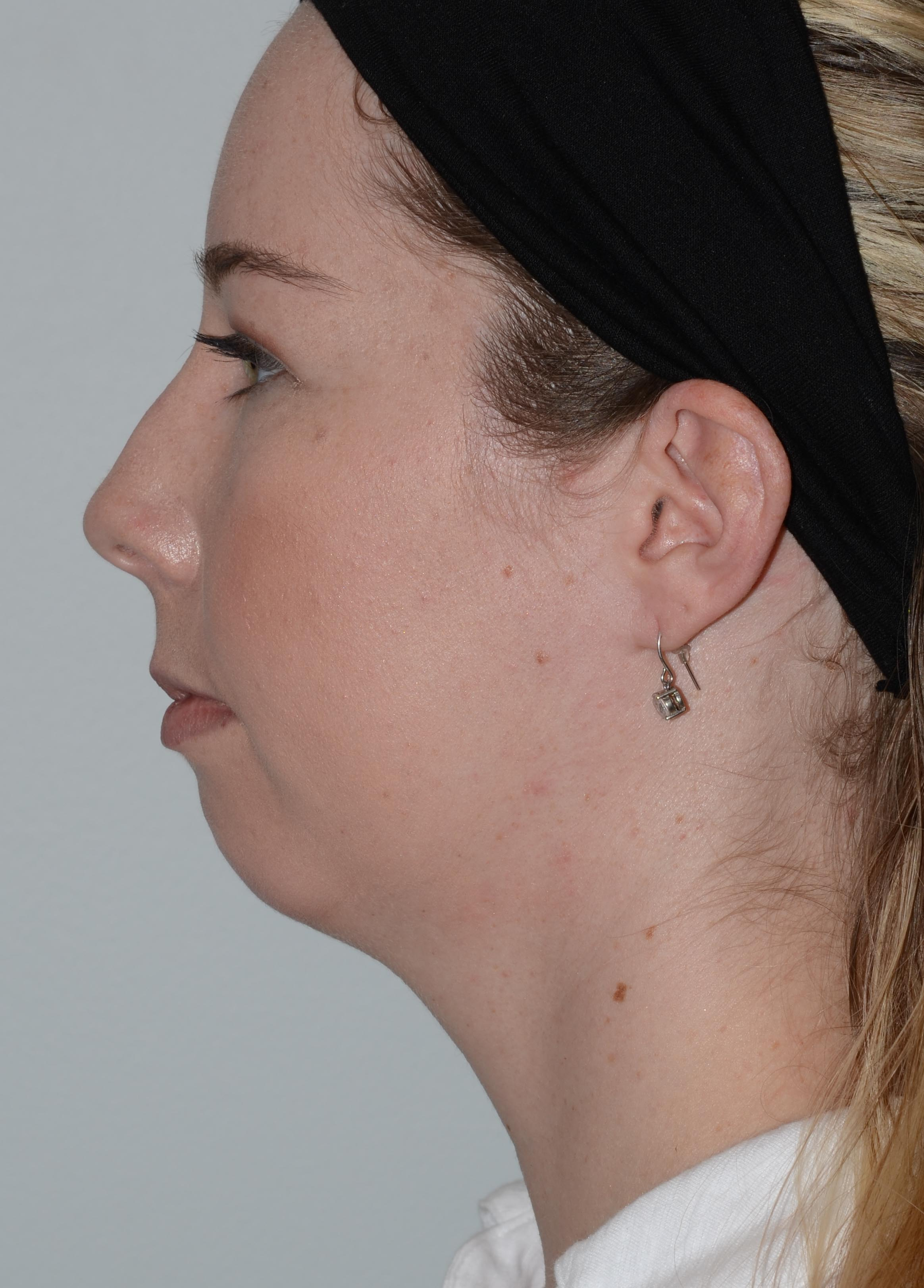 Chin Augmentation 01 Before