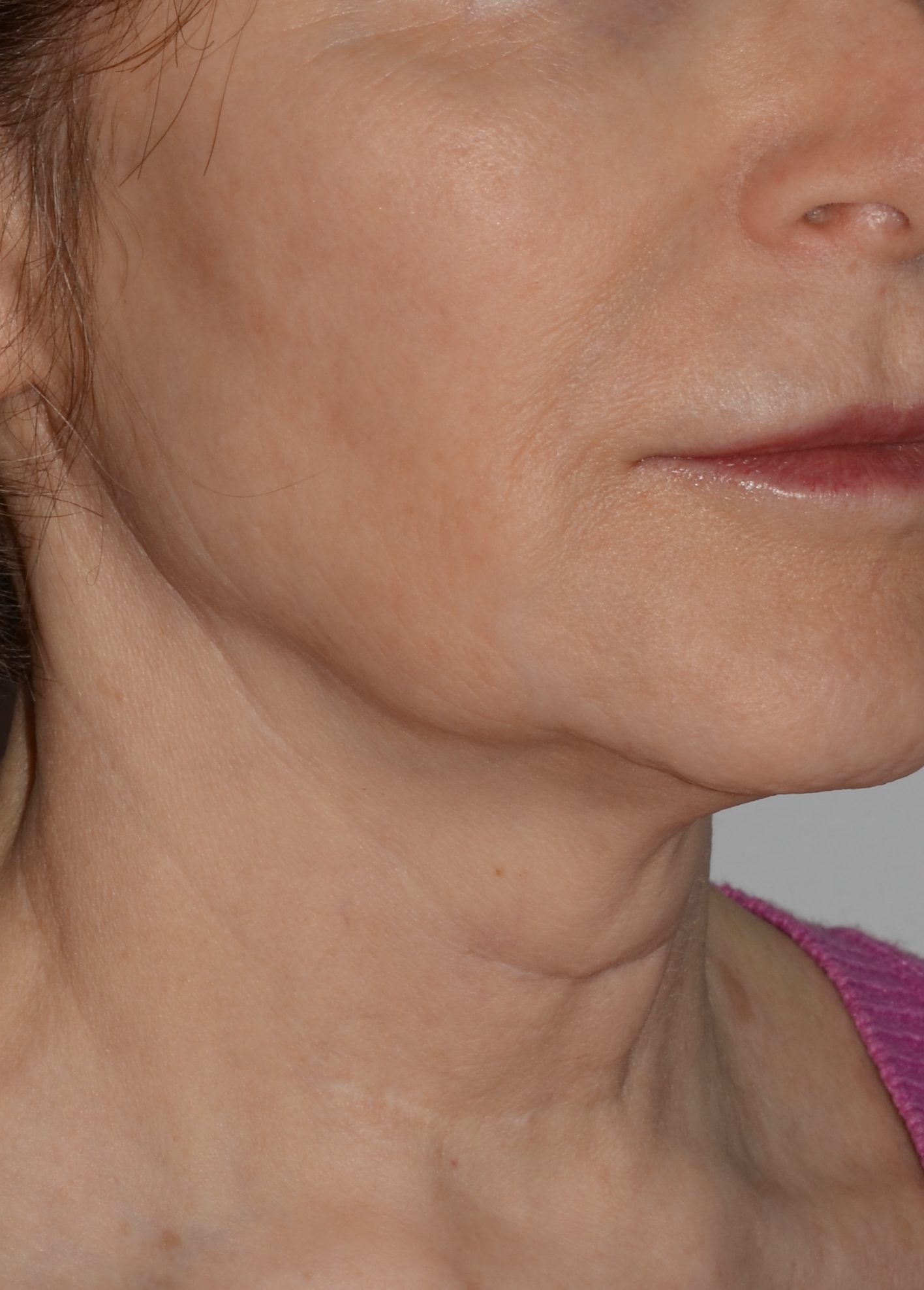 Face and Neck Lift 2 Before