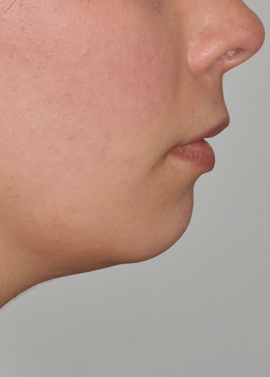 Direct Neck Lift 02 Before Resized