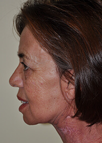 Face & Neck Lift 07 After