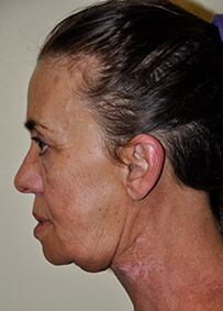 Face & Neck Lift 07 Before