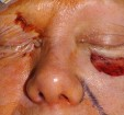 Eyelid and Cheek Reconstruction 13 Before