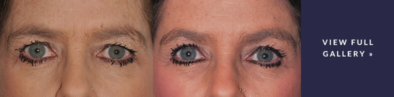 eyebrow-lift-gallery-cta.jpg