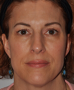 infraorbital-cheek-filler-3-post-frontal-2.jpg