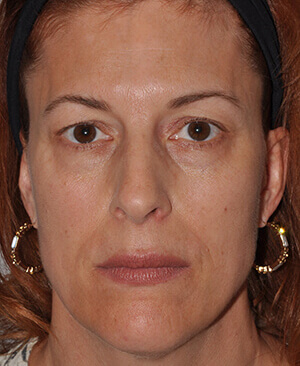 infraorbital-cheek-filler-3-pre-frontal-2.jpg